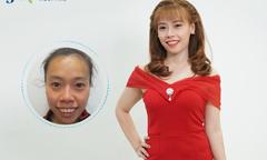 Cô gái Tiền Giang 'lột xác' sau phẫu thuật hàm hô