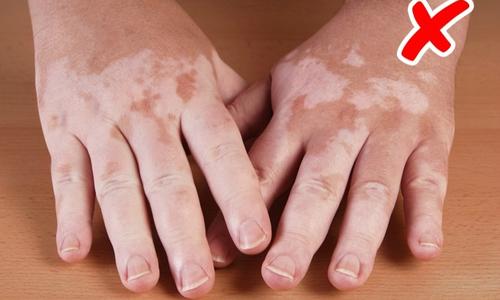 8 bệnh nguy hiểm bạn có thể nhận ra từ triệu chứng bên ngoài