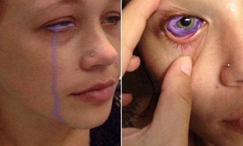Khóc ra nước mắt màu tím do gặp biến chứng sau khi xăm nhãn cầu