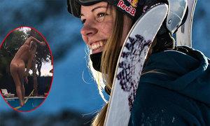 Nữ VĐV vô địch thế giới 21 tuổi khỏa thân táo bạo