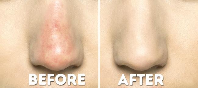 Để lớp phấn nền ở vùng chữ T giữ màu lâu hơn, hãy thoa một lớp kem lót dành cho mắt lên trước khi thoa kem nền.