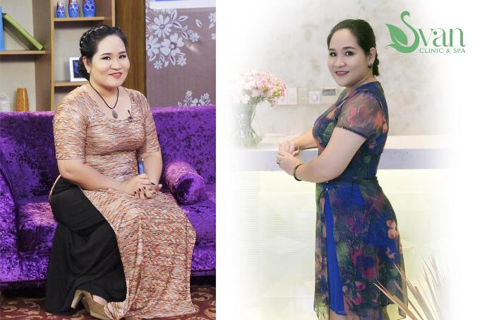 quan-quan-next-top-model-2017-tu-thuong-goi-lam-dep-mua-mot-tang-hai-2