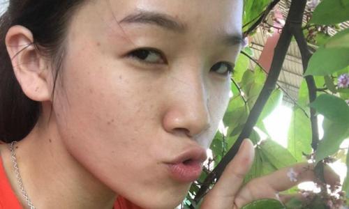 Cô gái bị gia đình người yêu phản đối vì sở hữu 'cặp mắt lươn'