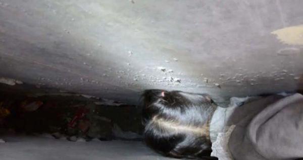 Đầu của bé gái bị kẹp chặt không thể nhúc nhích nổi.