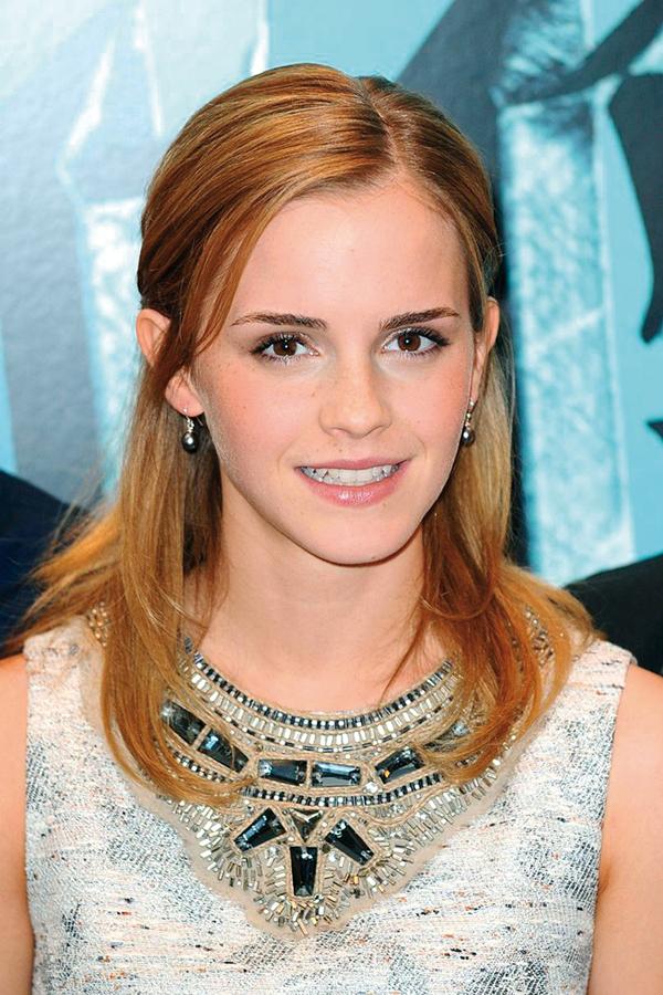 Kiểu tóc cột nửa đầu của cô phù thủy nhỏ rất được ưa chuộng trong năm 2008.