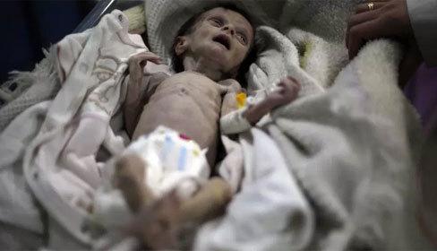 Em bé Syria da bọc xương giữa vùng bom đạn