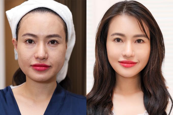 phuong-phap-nang-co-tre-hoa-duoc-doanh-nhan-ua-chuong-tai-ruco-clinic-4