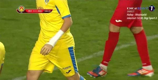 Cosmin với cánh tay giả khi thi đấu.