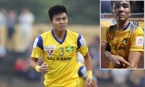 Cựu cầu thủ U23 trưng bằng chứng tố bị ngoại binh của Khánh Hòa cắn vào tay