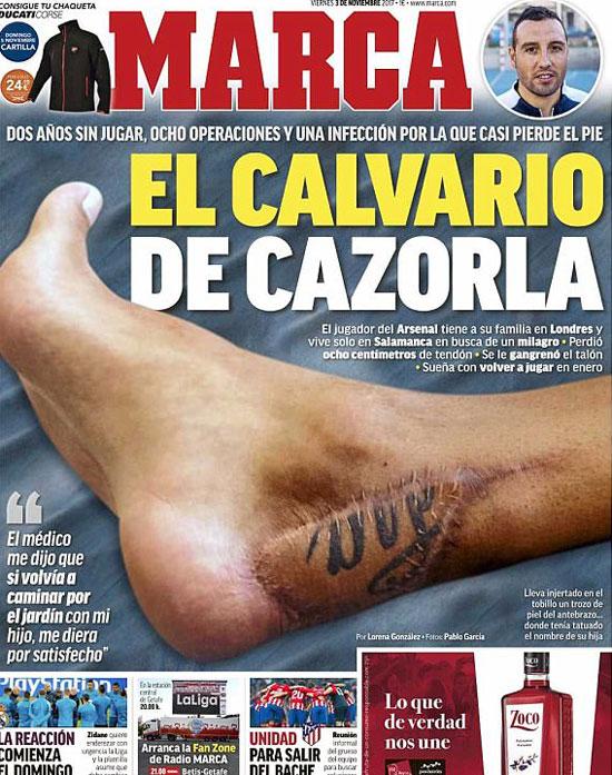 Ảnh vết thương của Cazorla trên tờ Marca