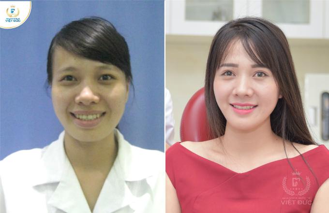 Niềng răng tạo cằm V-line kết hợp với công nghê thiết kế nụ cười (Digital Smile Design) mang đến nụ cười thương hiệu, đẹp với từng khuôn mặt.