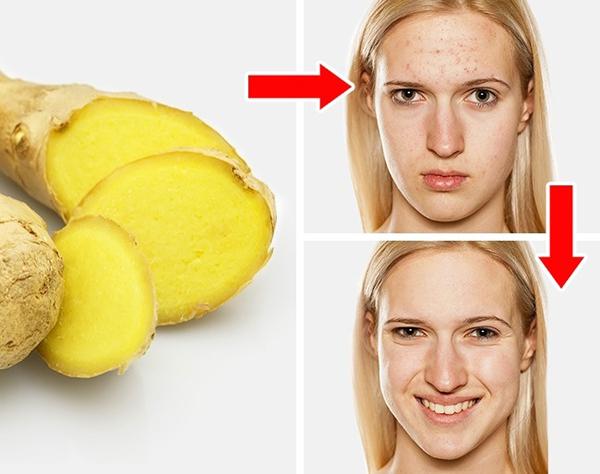 Trộn 1 thìa gừng đập dập với 1 thìa giấm táo, thoa lên vùng da bị mụn, để qua đêm. Sáng thức dậy, bạn sẽ thấy vết sưng mụn giảm đáng kể.