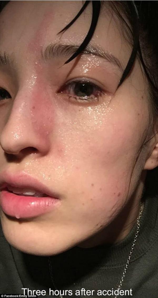 Ba tiếng sau, khuôn mặt Emily xuất hiện vết bỏng nhẹ.