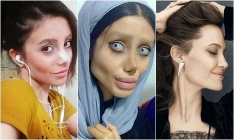 Cô gái Iran phẫu thuật hơn 50 lần để giống Angelina Jolie nhưng lại hóa 'cô dâu ma'