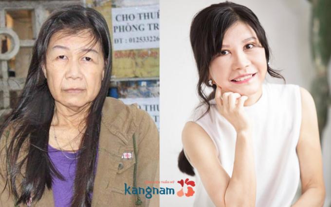 kangnam-sap-ra-mat-benh-vien-thm-my-tieu-chun-han-tai-mien-bac-3
