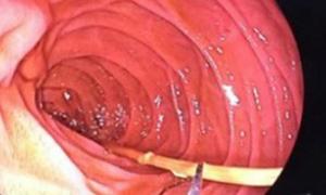 6 cây nhang cháy dở trong ruột non người đàn ông tâm thần