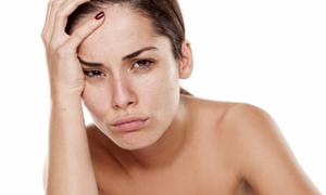 Bí quyết giải tỏa 'stress' cho làn da mệt mỏi