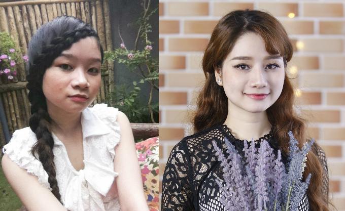 Xuka Ngọc Huyền là trường hợp phẫu thuật thẩm mỹ để trở thành phiên bản tốt hơn của chính mình do bác sĩ Nguyễn Thanh Vân thực hiện. Cô trải qua ca nâng mũi, độn cằm và nâng ngực.