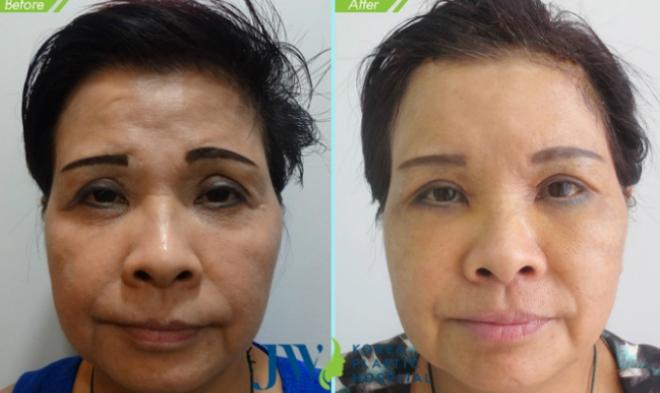 Cô H.P. Mỹ Lệ, 59 tuổi đã được lột xác gương mặt sau khi ứng dụng công nghệ treo chân mày nội soi. Phương pháp này có tác dụng can thiệp xóa nếp nhăn, góp phần căng da vùng trán hiệu quả
