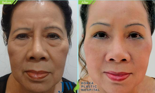 Nhận thấy những khuyết điểm và lão hóa xuất hiện trên gương mặt, rất nhiều người đã tìm đến và thực hiện phương pháp treo chân mày nội soi 4X với sự lột xác ấn tượng. Ngay chính người trong cuộc cũng phải ngỡ ngàng khi nhìn hình ảnh của chính mình trong gương.Cô N.T. Thu Phượng đã bước sang tuổi 60 nên gương mặt có nhiều nếp nhăn, cung chân mày chảy xệ với nhiều lão hóa. Ứng dụng công nghệ xóa nếp nhăn rảnh trán, xóa những vết nhăn quanh mắt và vết chân chim, cô đã có gương mặt trẻ trung đến bất ngờ.