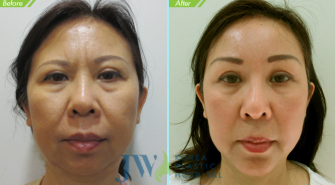 Mặc dù mới bước sang tuổi 45 nhưng da mặt của chị N.T Phương Thảo đã có những nếp nhăn và lão hóa xuất hiện ở mắt. Chị quyết định thay đổi với công nghệ treo chân mày, gương mặt sau đó đã được trẻ hóa toàn diện đến ngỡ ngàng.