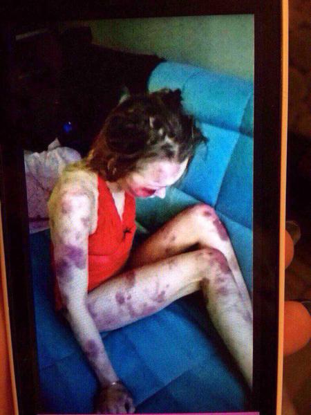 Thân thể đầy thương tích của Anastasia khiến bạn bè và gia đình bị sốc. Ảnh: Vk.com