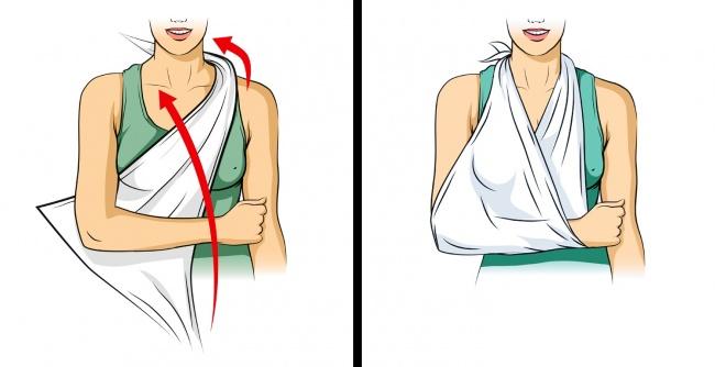 Sơ cứu khi bị thương. Những giây phút đầu tiên khi tai nạn xảy ra và trước khi xe cứu thương tới cực kỳ quan trọng. Băng bó vết thương đúng trong một số trường hợp còn cứu sống cuộc đời nạn nhân. Sau đây là nhữngmẹo băng bó trong nhiềutình huống khác nhau. Tay hoặc chân bị gãy nên được cố định và chờ cấp cứutới. Băng đeo cánh tay được buộc quanh cổgiữ cho tay bị gãy ở một vị trí, đồng thời là dấu hiệu cảnh báo cho người khác rằng, bạn đang bị thương.