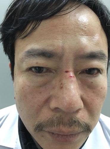 Bác sĩ bị người nhà bệnh nhân đấm liên tiếp vào vùng mặt.