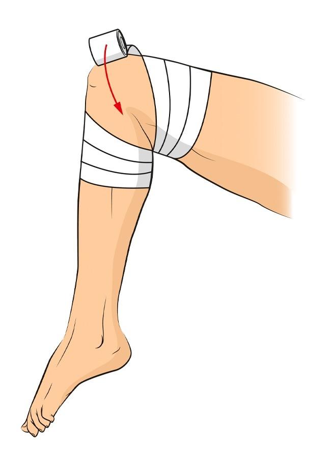 Trong trường hợp đầu gối bị thương, cách băng bó trênsẽ rất hữu ích, giúp cố định phần khớp. Bạn có thể dùng băng cuộn mềm cho loại vết thường này.