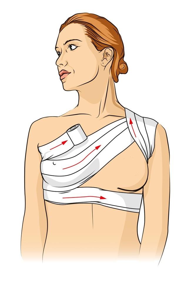 Cách băng bó như minh họathường được áp dụng trong trường hợp bị thương ở ngực hoặc gãy xương đòn.