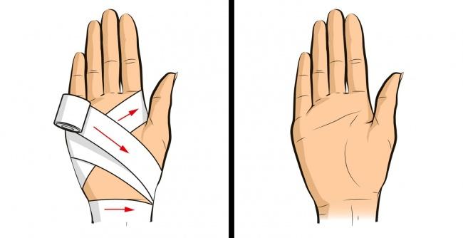 Kiểu băng trên được gọi là băng số 8 để cố định những khớp nhỏ hơn hoặc để chữa vết thương.