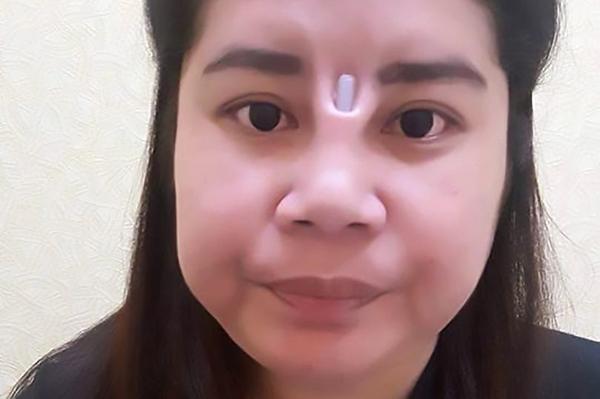 Miếng silicone nâng mũi trồi hẳn ra giữa hai mắt người phụ nữ. Ảnh: Asia Wire