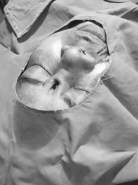 Một lỗ lớn xuất hiện ở phía trên sống mũi bệnh nhân sau khi tháo bỏ miếng silicone. Ảnh: Asia Wire