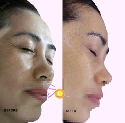 Da vùng mặt cũng có thể lão hóa sớm do tác động bởi nhiều yếu tố.