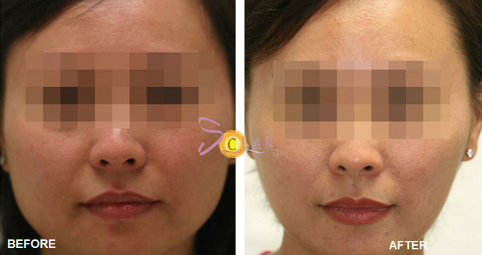 Hiệu quả thon gọn khuôn mặt của giải pháp Botox Nano không tiêm.