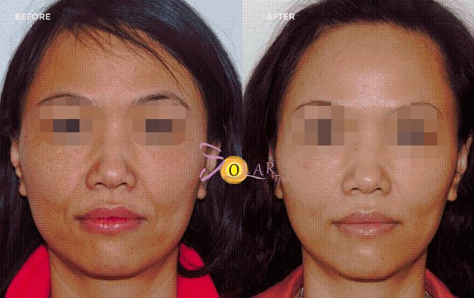 Botox Nano không tiêm đang áp dụng tại Solar Spa, bạn được bảo đảm kết quả tốt nhất và không gây bất kỳ phản ứng nào. Sau khi thực hiện từ 40 phút đến 90 phút vùng mặt, da sẽ trở nên căng mịn, lỗ chân lông thu hẹp và khuôn mặt thanh tú hơn.