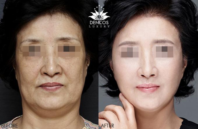 Khuôn mặt lấy lại độ thon gọn, sắc nétnhờ liệu pháp nâng cơ chảy xệ, trẻ hóa, định hình đường nét V-line bằng chỉ sinh học đến từ Hàn Quốc. Hiện dịch vụ nàyđược ưu đãi 20% chi phí tại Dencos Luxury.