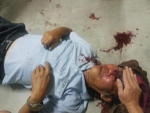 Ông Quang bị nam bảo vệ đánh thâm bầm mắt, chảy nhiều máu.