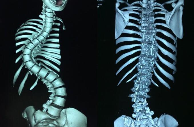 Xương sống của bệnh nhân trước và sau khi nắn chỉnh. Ảnh: C.X.Đ