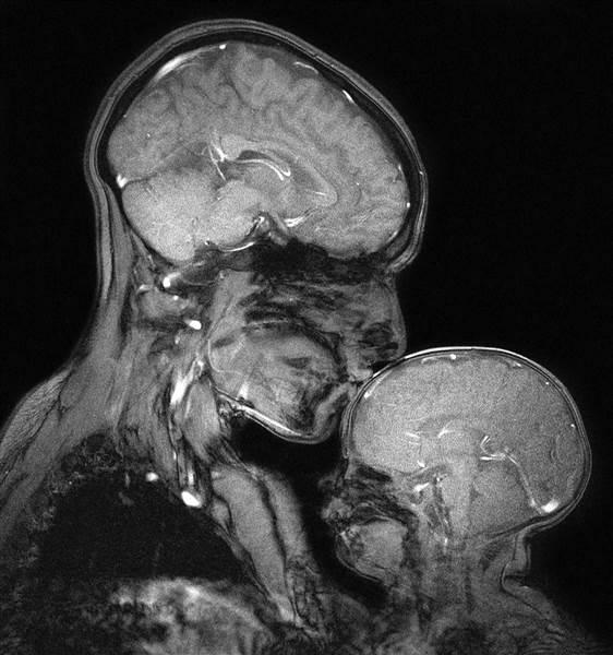 Saxe sử dụng máy chụp cộng hưởng từ không bức xạ để không gây hại cho mẹ và bé.