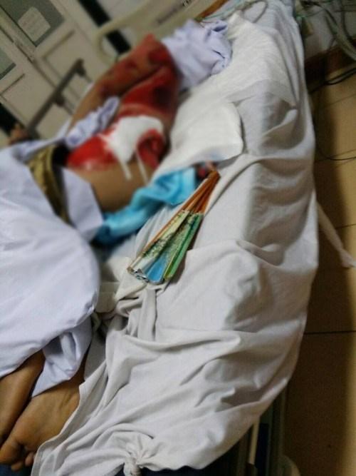 Anh Thái bị thương nặng sau khi bị nhóm trộm cây cảnh lái xe tải đâm thẳng vào người. Ảnh Facebook Nguyễn Thị Thu Giang