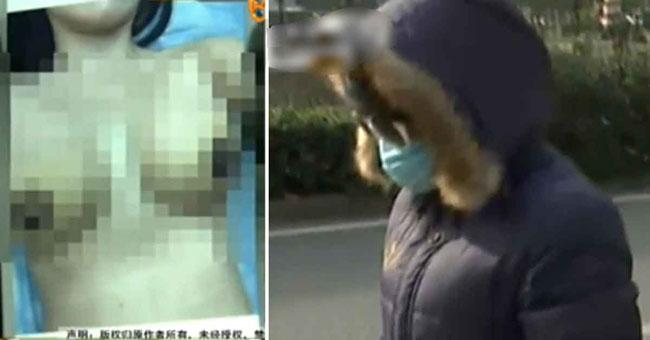 Ngực của Lee sau ca phẫu thuật (bìa trái) và hình ảnhLee xuất hiện ở tòa gần đây (bìa phải)