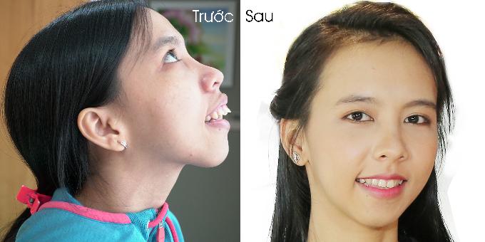 Hình ảnh khác biệt của Hồng Ngân trước và sau khi phẫu thuật.