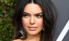 Kendall Jenner lên tiếng khi bị chê mặt đầy mụn trứng cá