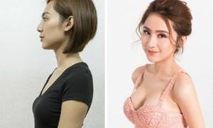 Cô nàng 'cá rô đực' tự tin diện trang phục sexy sau nâng ngực