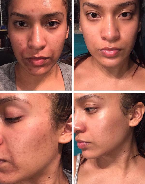 Jennifer Cabrera bị mụn nghiêm trọng từ năm lớp 5 cho đến hiện tại, tình trạng da có nhiều vết thâm đen, không đều màu. Sau vài tháng lăn kim, vết thâm trên da của Jennifer đã mờ đi rất nhiều.