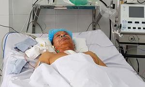 Cưa xương ức xoa tim giúp cụ ông hồi sinh từ cõi chết