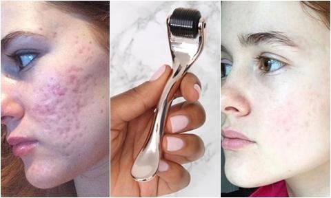 Sự thay đổi của làn da nhiều sẹo rỗ, nếp nhăn sau khi lăn kim