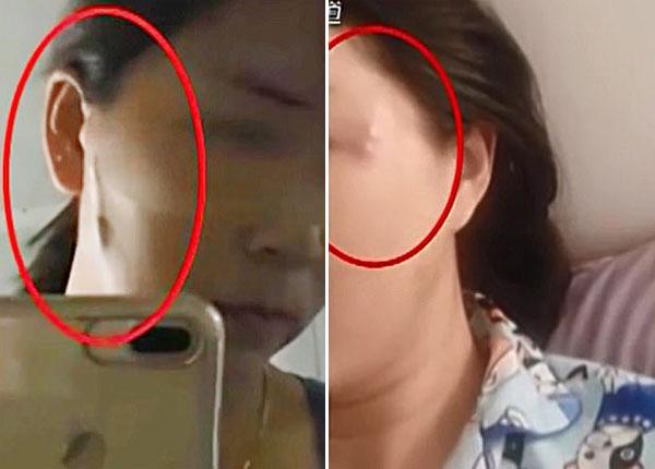 Những vết sưng to và dài trên mặt người phụ nữ.