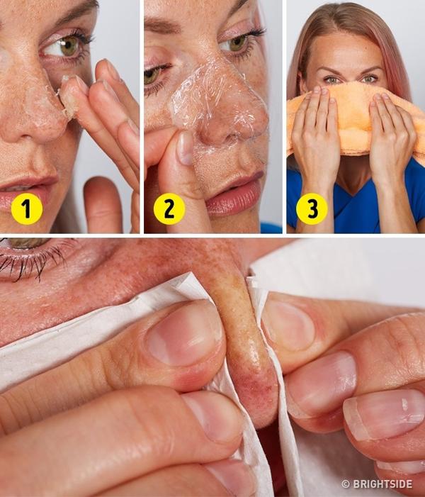 Thoa một chút vaseline lên mũi rồi dùng màng bọc thực phẩm đắp lên khoảng 5 phút. Gỡ ra, lau sạch